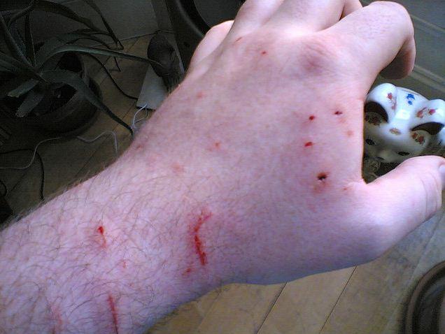 Wie man Katzenbisse und Biss Infektionen behandelt?